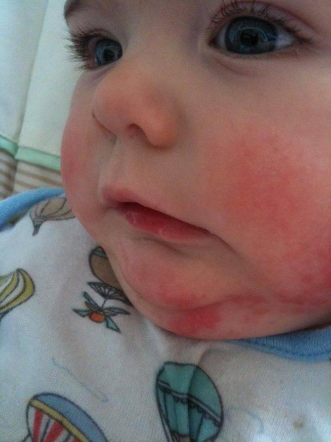 Аллергическая сыпь у новорожденного