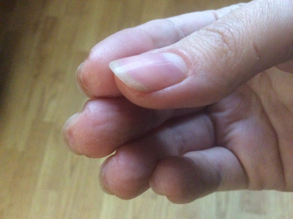 Паронихия - воспаление вокруг ногтя