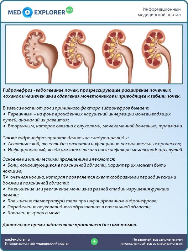 Лечение гидронефроза в medical plaza