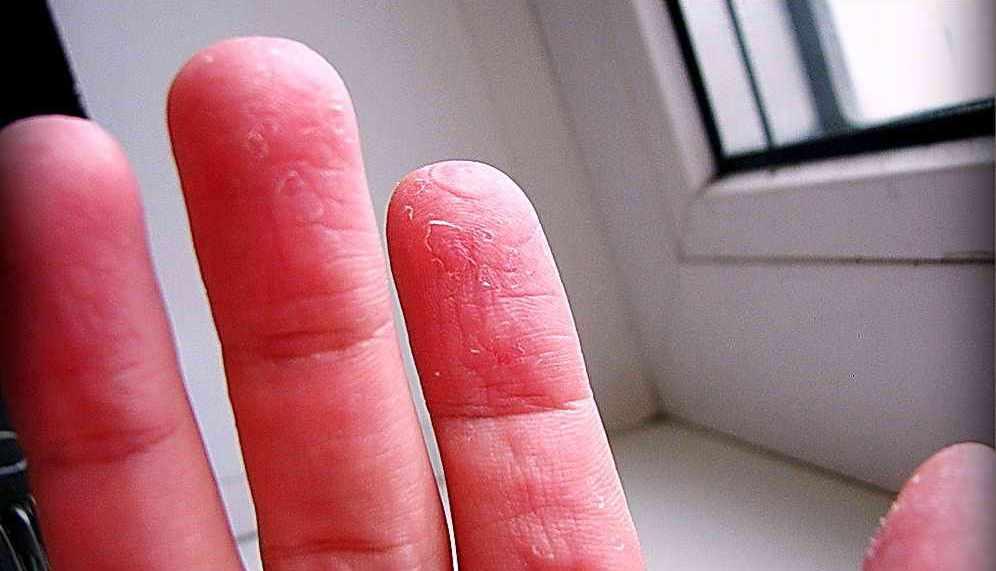 Проблемы кожи стоп