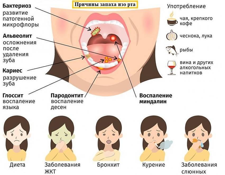 Неприятный запах изо рта - как избавиться от неприятного запаха