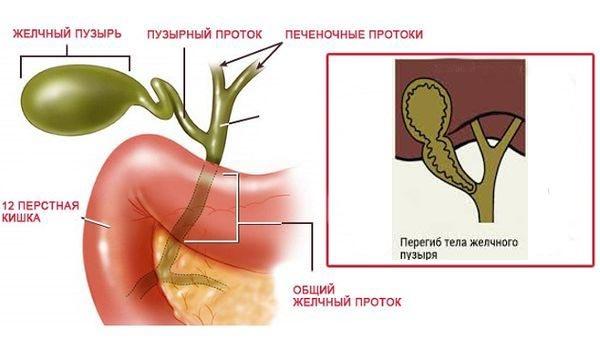 Деформация желчного пузыря / заболевания / клиника эксперт