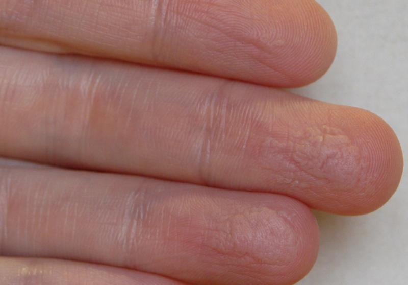 Экзема на руках: причины, симптомы, лечение, диагностика