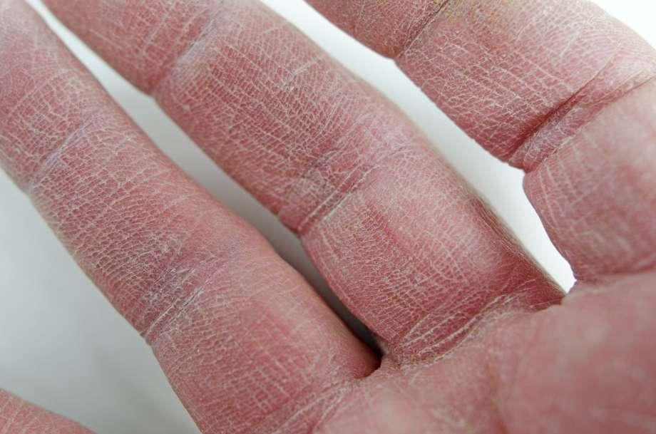 Ладонно-подошвенный синдром и ладонно-подошвенная кожная реакция | memorial sloan kettering cancer center