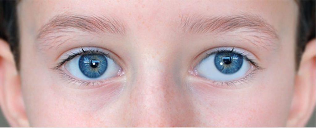 Косоглазие у детей — до какого возраста развивается и как лечится?