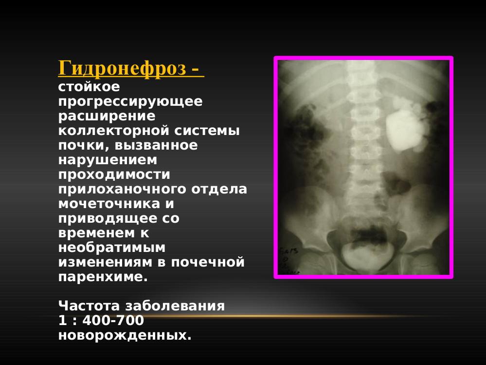 Гидронефроз почек лечение