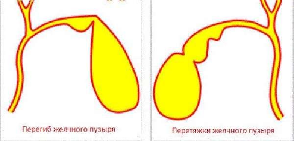 Перегиб желчного пузыря у ребенка: симптомы загиба