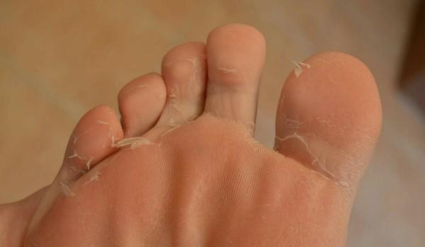 Варикоз у детей, фото и симптомы варикоза, варикоз ног у детей.