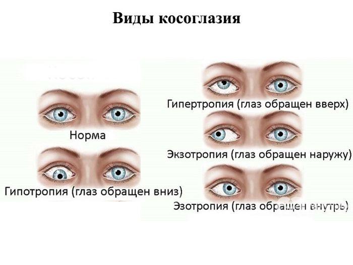 Передается ли косоглазие по наследству? - энциклопедия ochkov.net