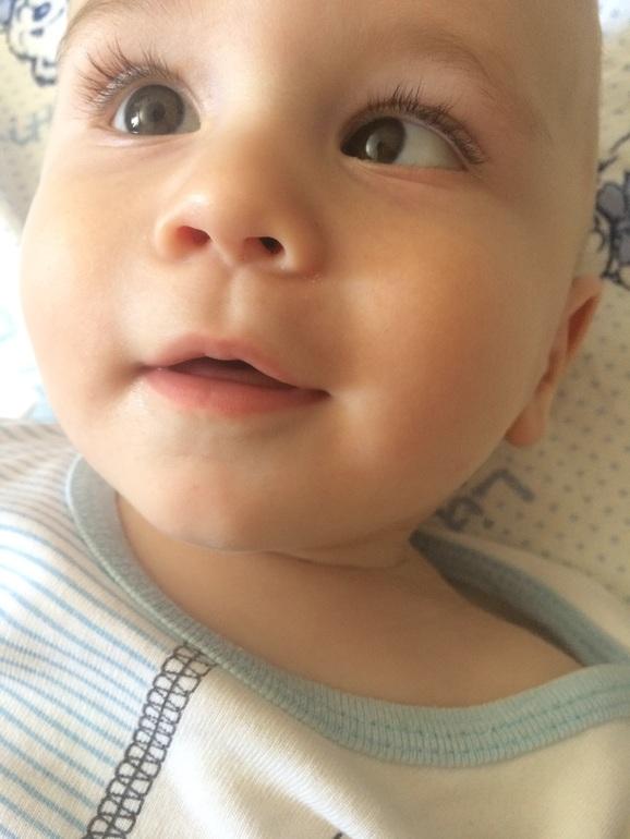Косоглазие у детей: причины и лечение, когда проходит у новорожденных, способы исправления