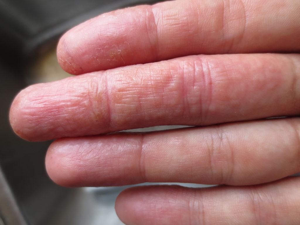 Трещины на пальцах ног — причины и лечение | центр подологии и остеопатии татьяны красюк