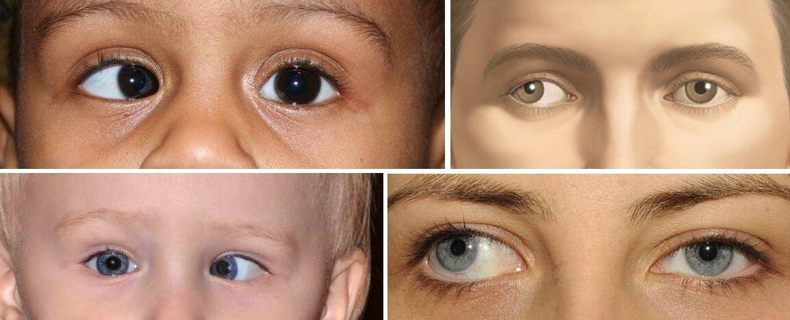 Гимнастика для глаз детей при косоглазии