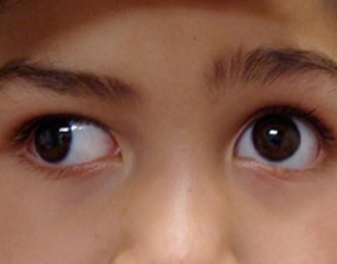 Как распознать истинное и ложное косоглазие у ребенка? «ochkov.net»