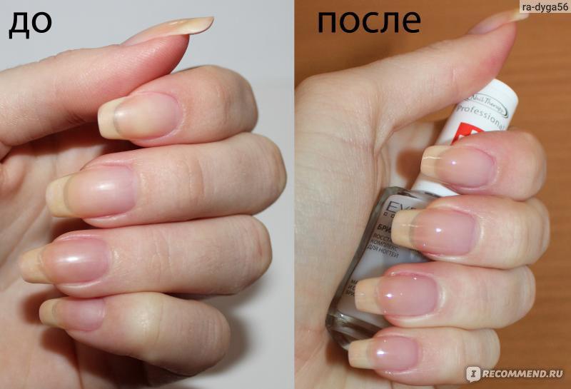 Наращивание ногтей при беременности