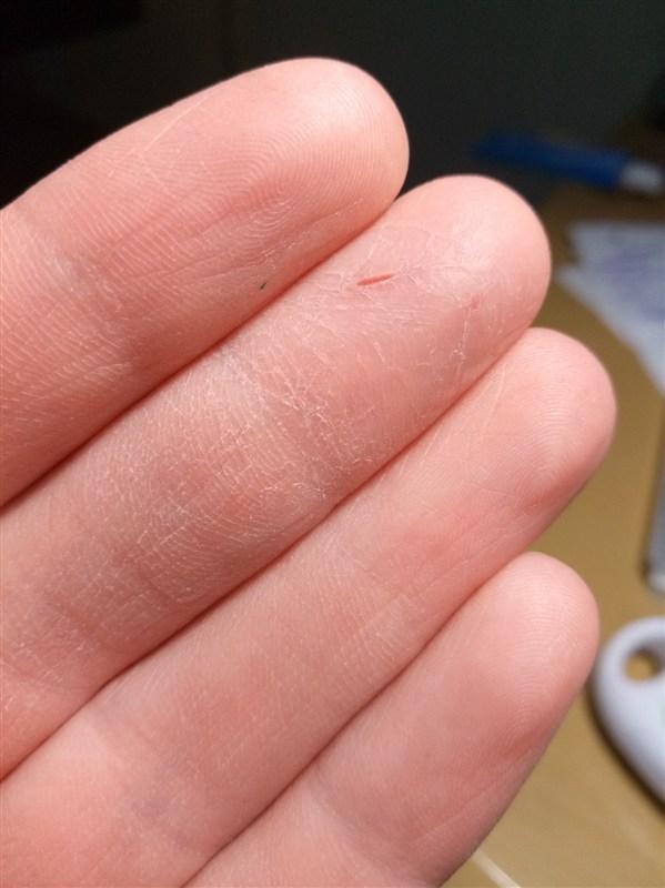 О каких проблемах говорит сухая кожа? - дерматология | добро пожаловать в «клинику айгерим»