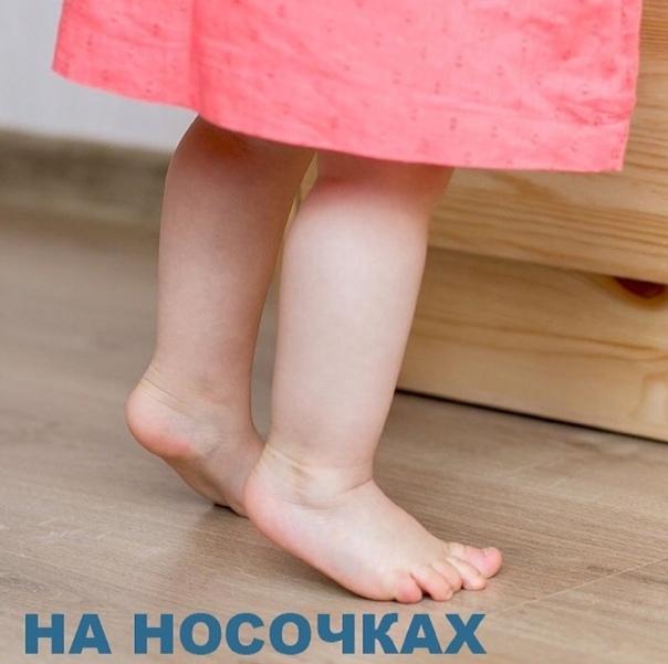ᐈребенок ходит на носочках: что делать?   медицентр
