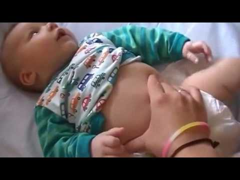 Массаж новорождённому при коликах