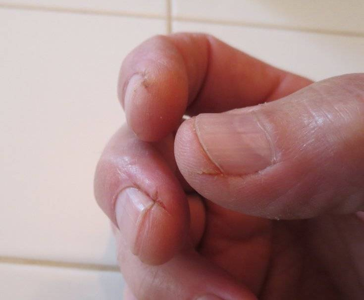 Шелушение кожи на руках: причины, диагностика, комплексное лечение