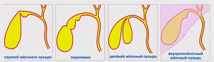 Желчный пузырь: песок, густая желчь, взвесь, рыхлый осадок в желчном пузыре (билиарный сладж) - медицинский центр «эхинацея»