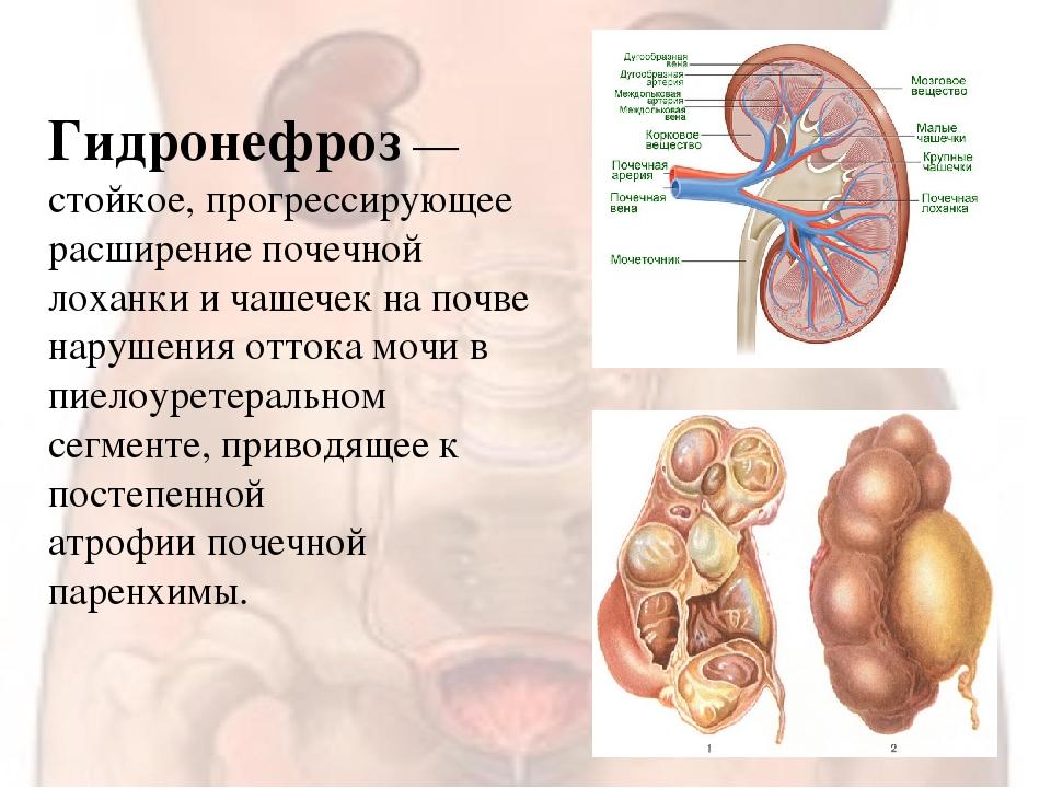 Заболевания почек — медицинский центр «целитель»