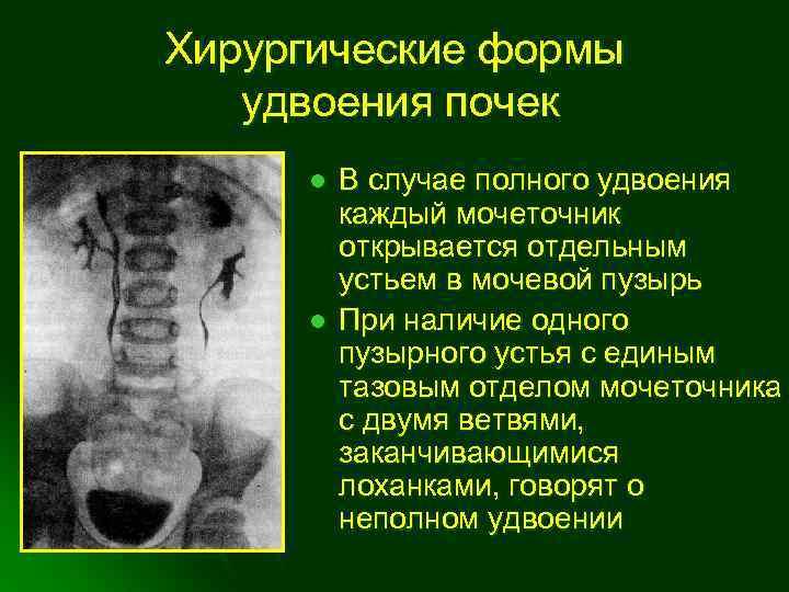 ▶лечение гидронефроза почки у детей в киеве ✅мц adonis