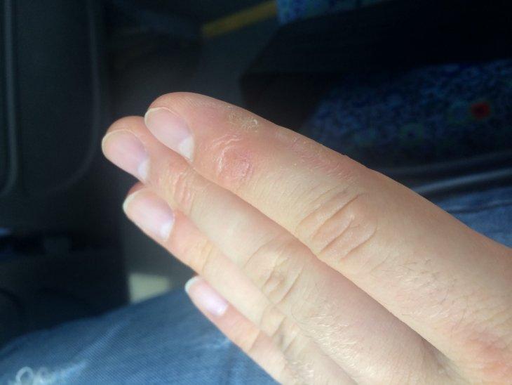 Кожа рук сохнет и трескается: причины и лечение