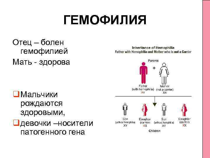 Наследственное облысение - симптомы, причины и лечение