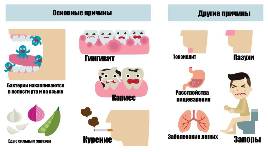 Кровоточат десна : причины и как их лечить