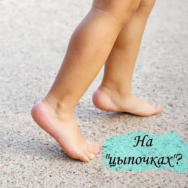 Ребенок ходит на цыпочках. это нормально?