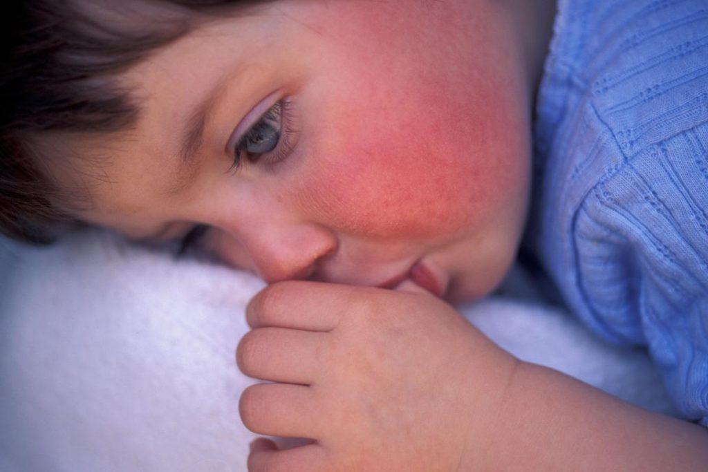 Кожная сыпь у детей: разбираем причины -  кожные высыпания у ребенка