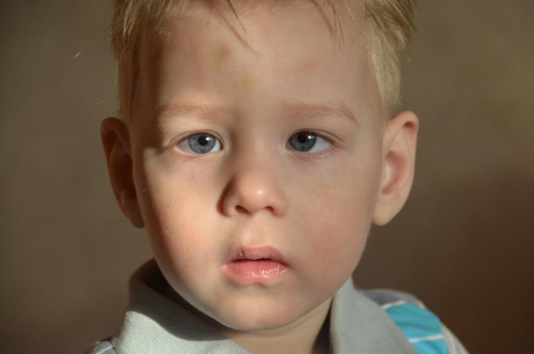 Как определить косоглазие у ребенка ???? информационный портал детское зрение