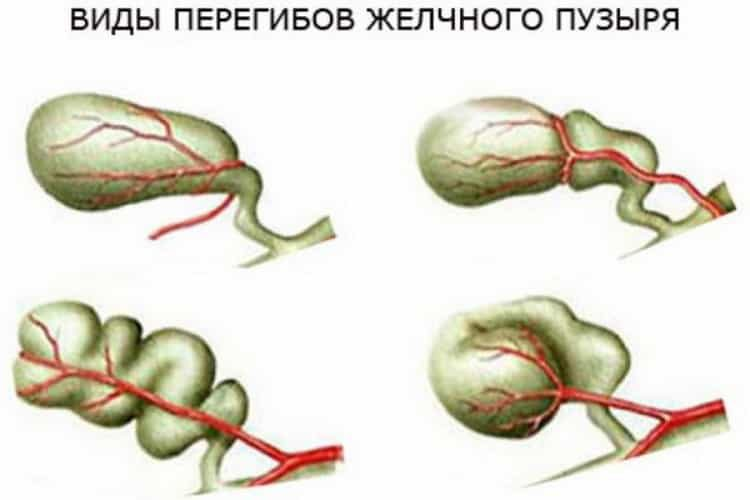Дистрофия печени. причины, симптомы и лечение!