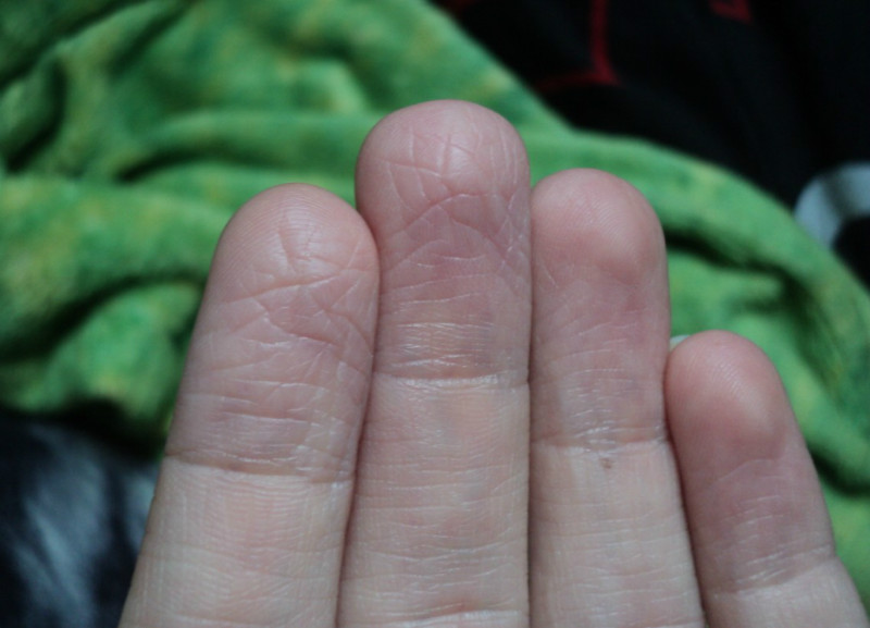 Ладонно-подошвенный синдром и ладонно-подошвенная кожная реакция