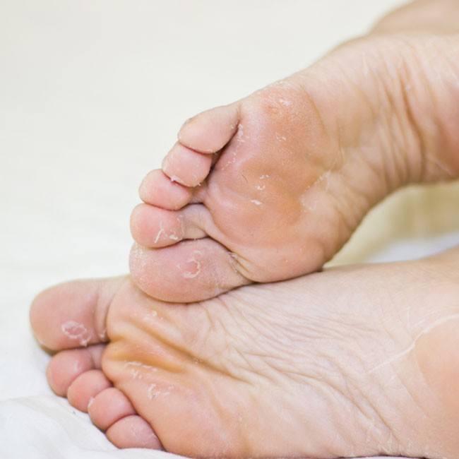 Почему у ребенка шелушится кожа — причины шелушения кожи у детей