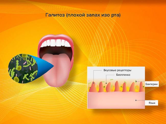 Запах изо рта при кариесе: как избавиться? - энциклопедия ochkov.net