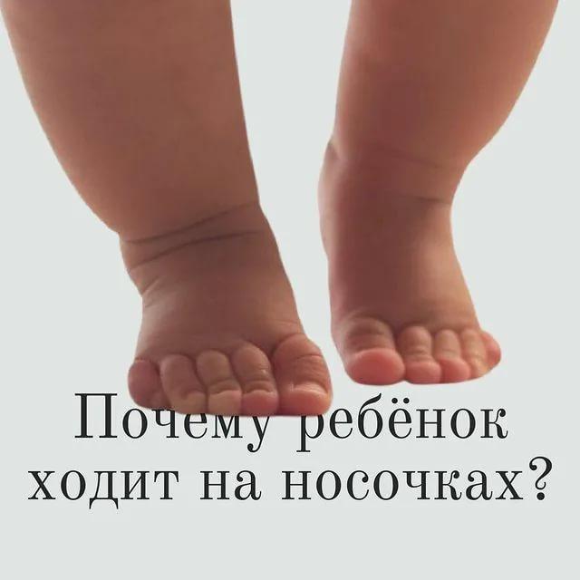Почему ребёнок ходит на цыпочках в 2 года: причины. почему ребенок 2 года ходит на носочках: комаровский